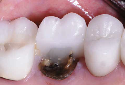 Risk Assessment Criteria for Tooth Preservation and Protocols for Successful Reconstruction